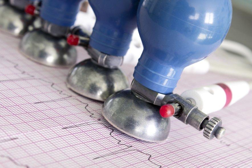 Методы диагностики заболеваний сердца ⋆ Лечение Сердца