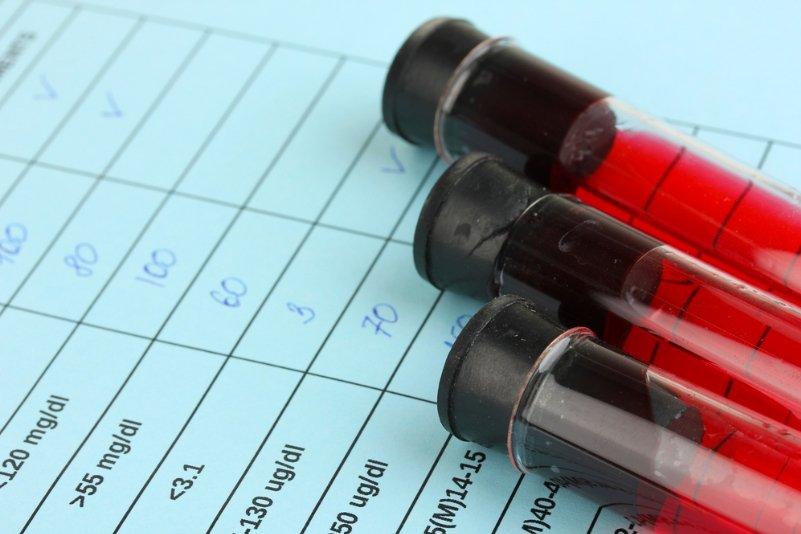 Общий анализ крови г кубинка джонсон и джонсон анализаторы крови