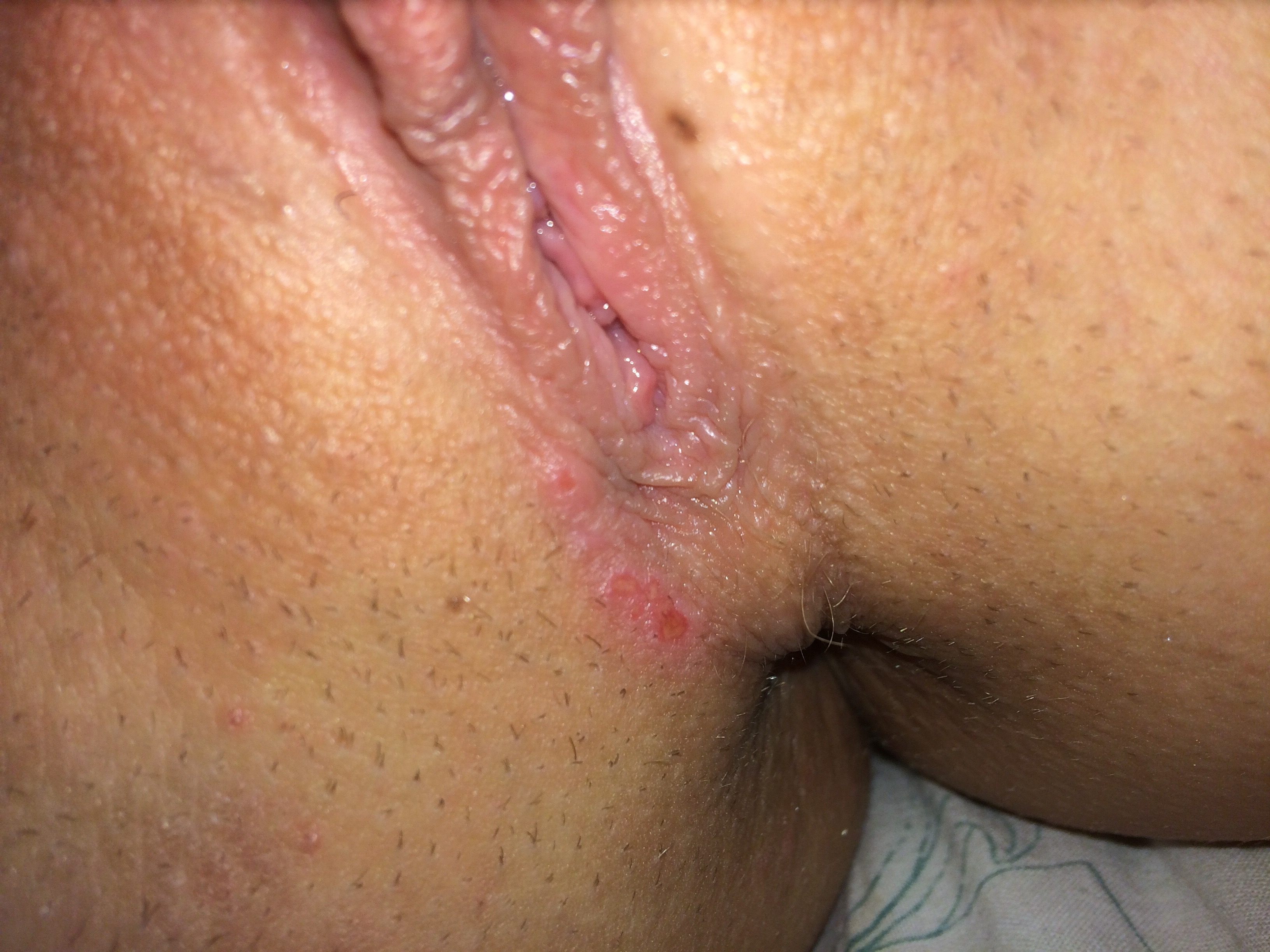 Hiv and aids rashes and skin conditions