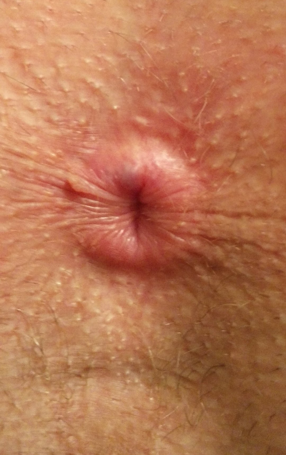 Mature indon herpes around anus fit