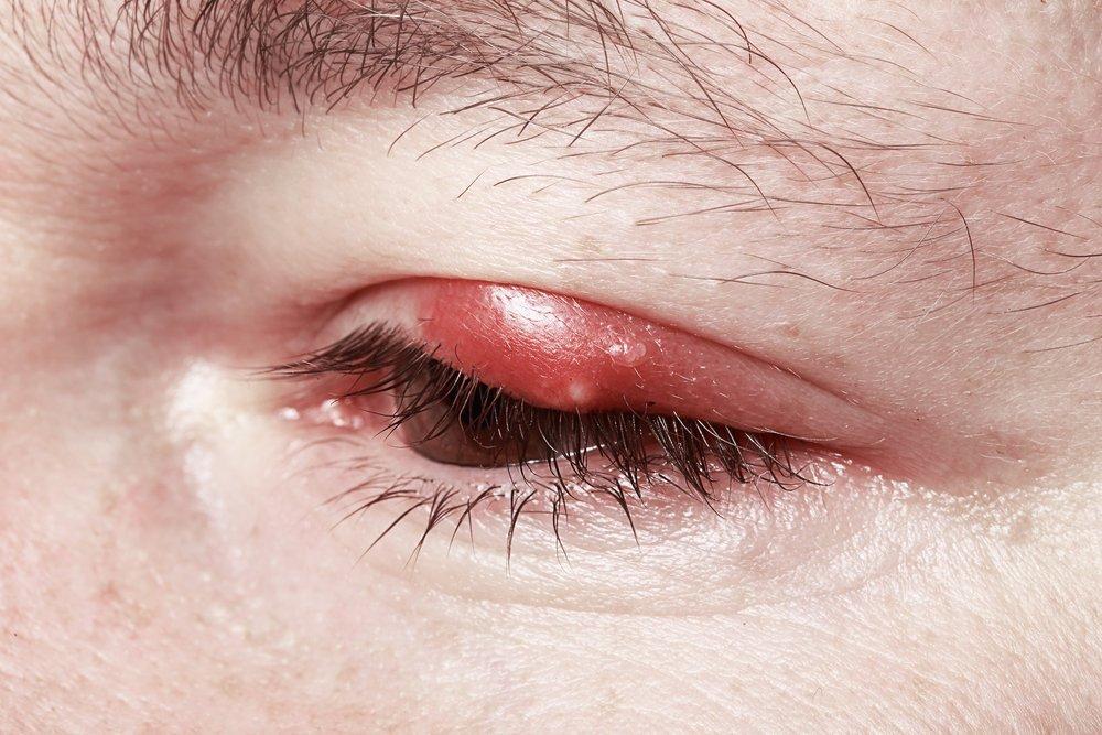 Ячмень на глазу: опасное воспаление