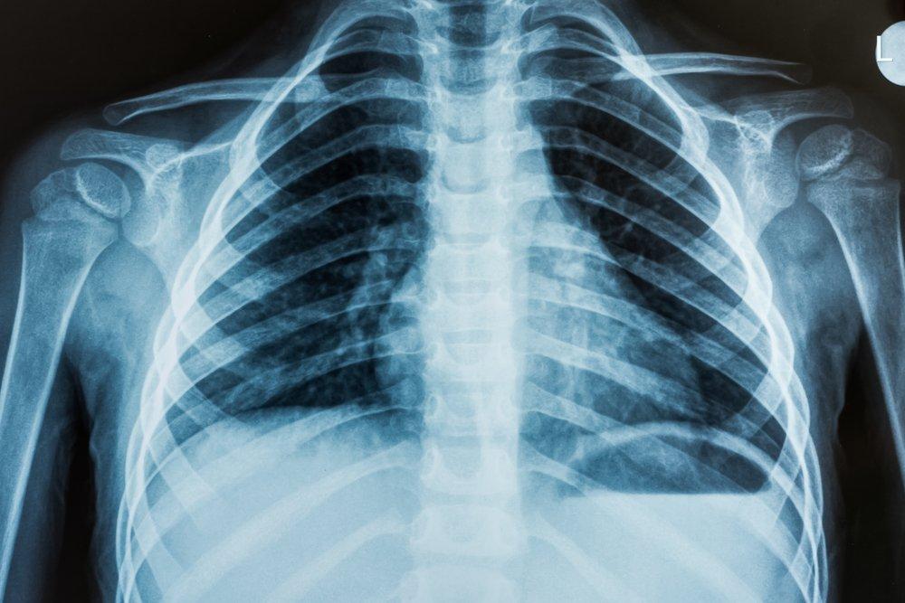Рентгенография в детском возрасте