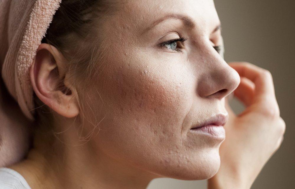Причины возникновения угревой сыпи на коже лица