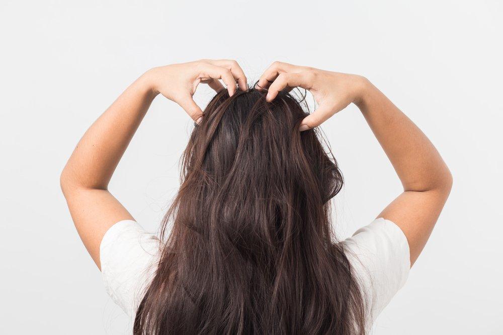 Что делать с псориазом на голове и теле