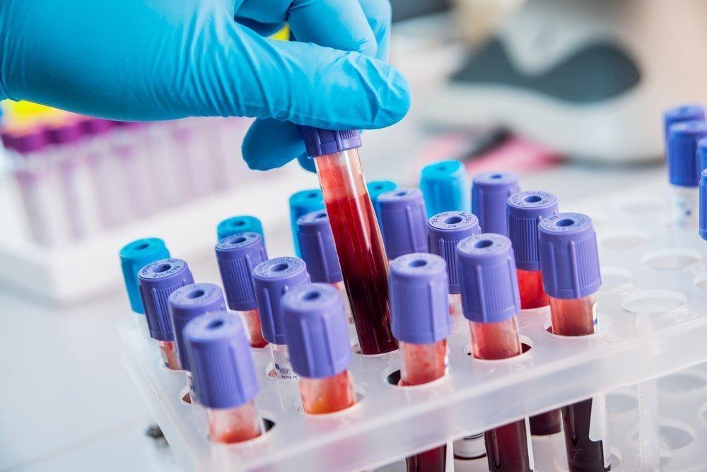Ферменты и диагностическая ценность исследований