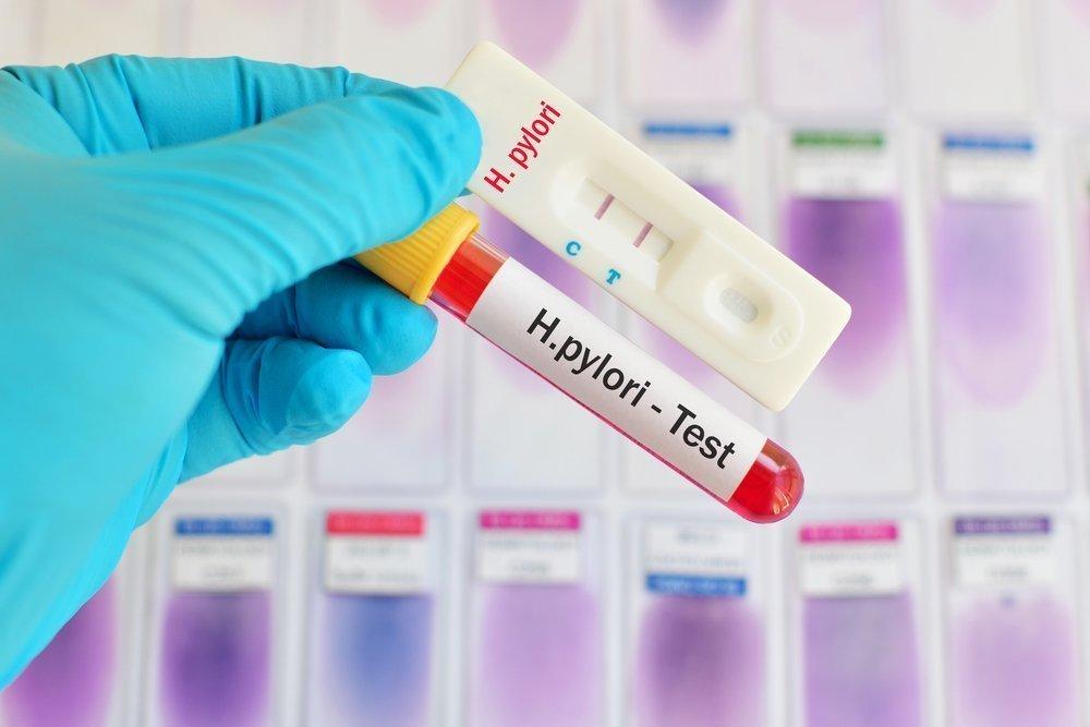 Знакомьтесь, Helicobacter pylori, возбудитель язвы!