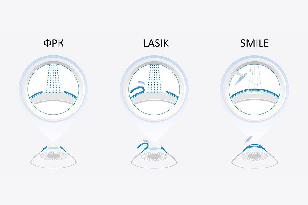 Метод ReLEX SMILE: современное решение
