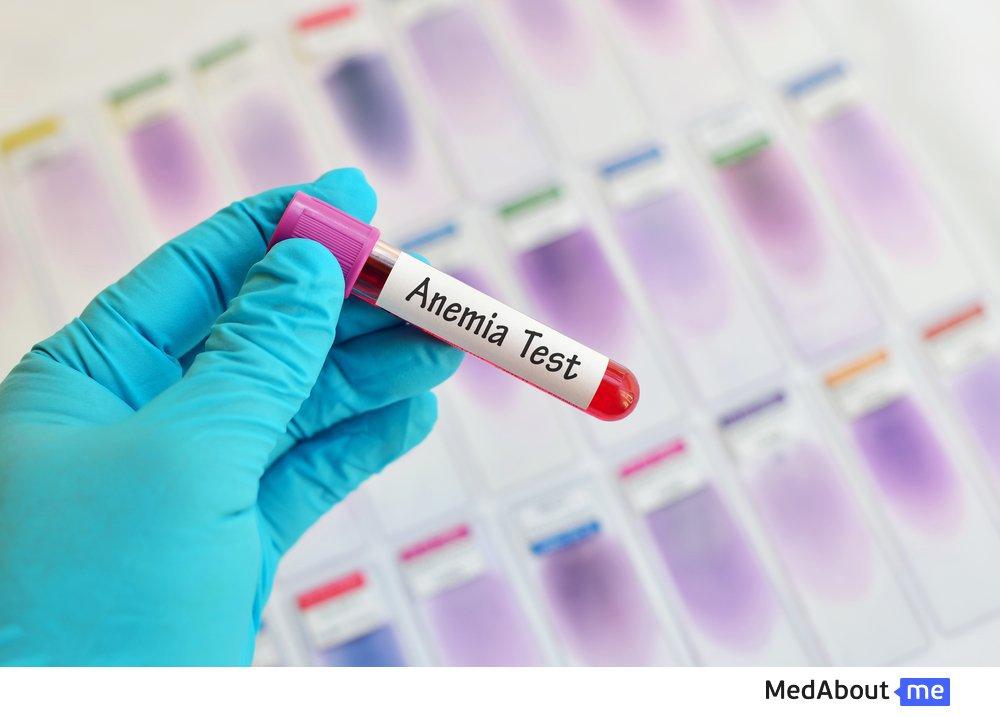 Разновидности анемии