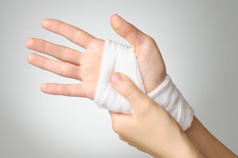 Растяжение руки