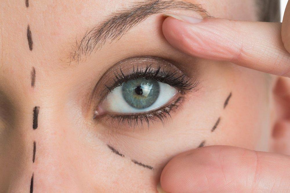 Глазная пластическая хирургия