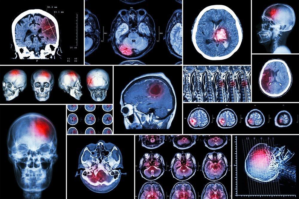 Что видит МРТ