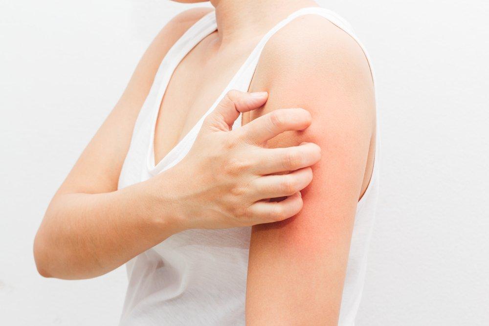 Симптомы острой крапивницы и хронической крапивницы