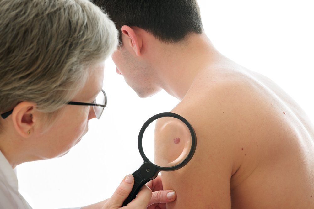Симптомы при саркоме Капоши