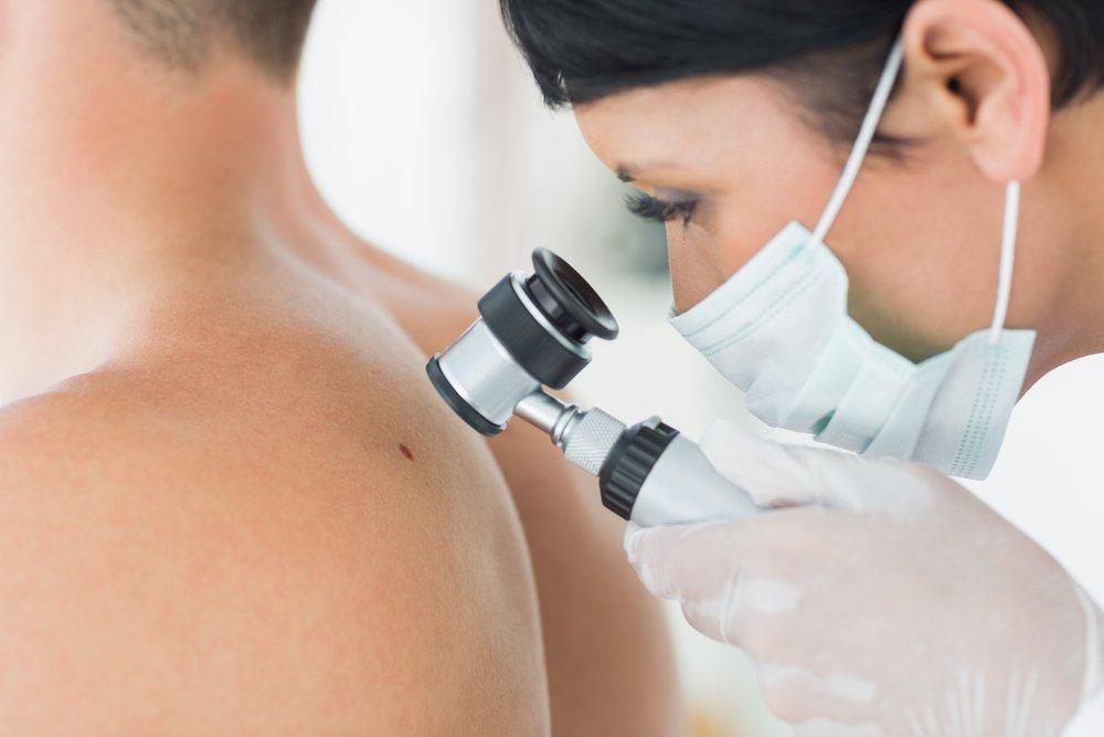 Симптомы меланомы кожи