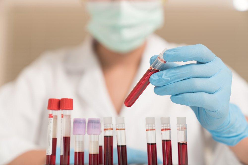Когда проводят глюкозотолерантный тест при беременности