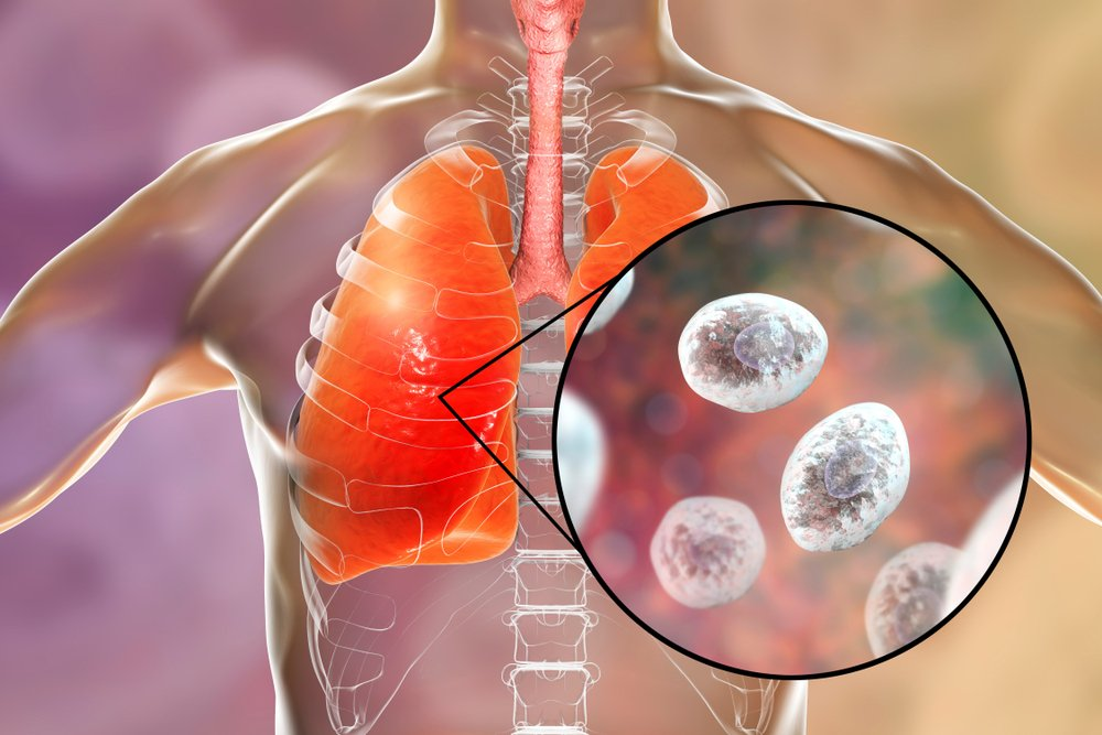 Снижение иммунитета как фактор грибковой пневмонии