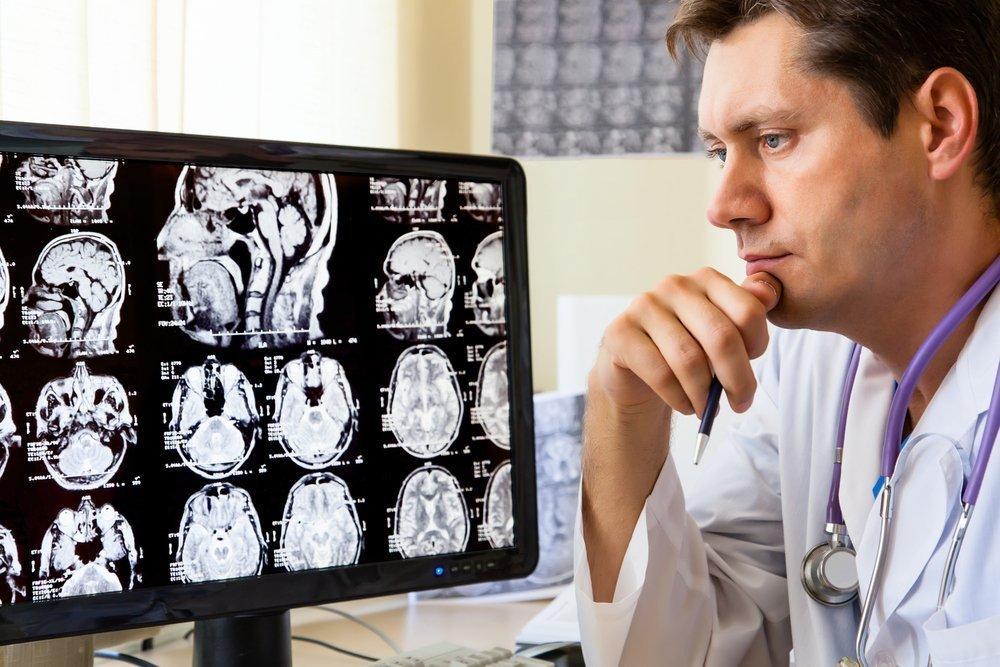 Лечение болезней головного мозга