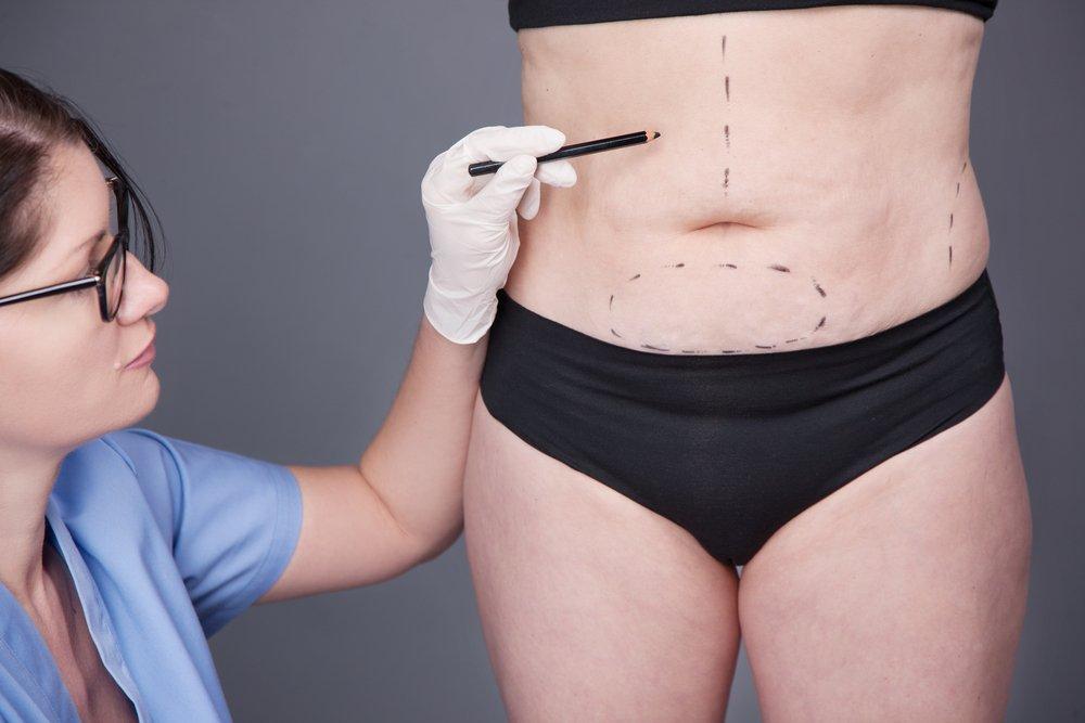 Похудение Операционным Способом. Операция на желудке для похудения: за и против и как худеть самому 🥙