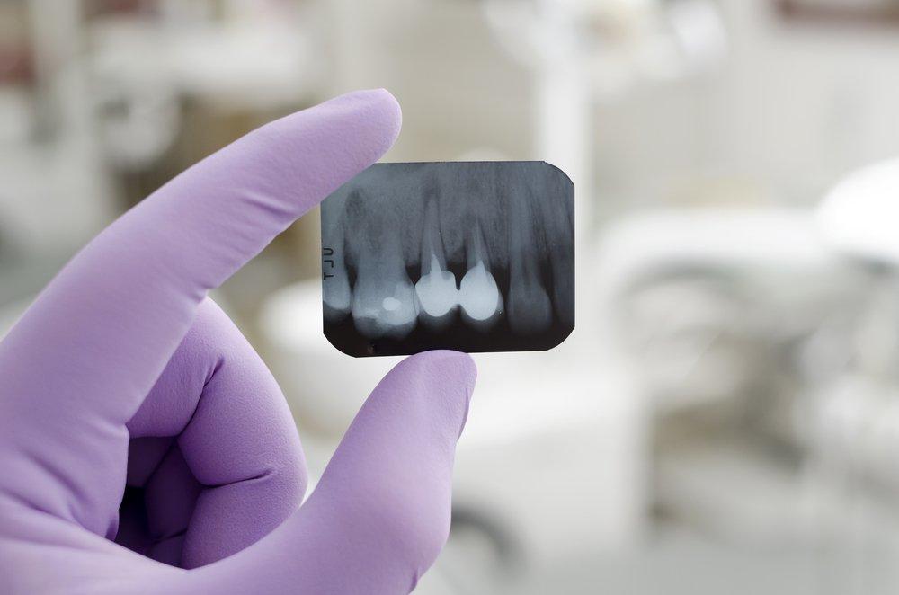Профилактика стоматологических осложнений