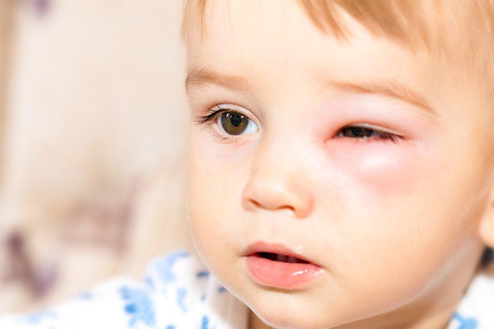 Проявление воспаления в области глаз
