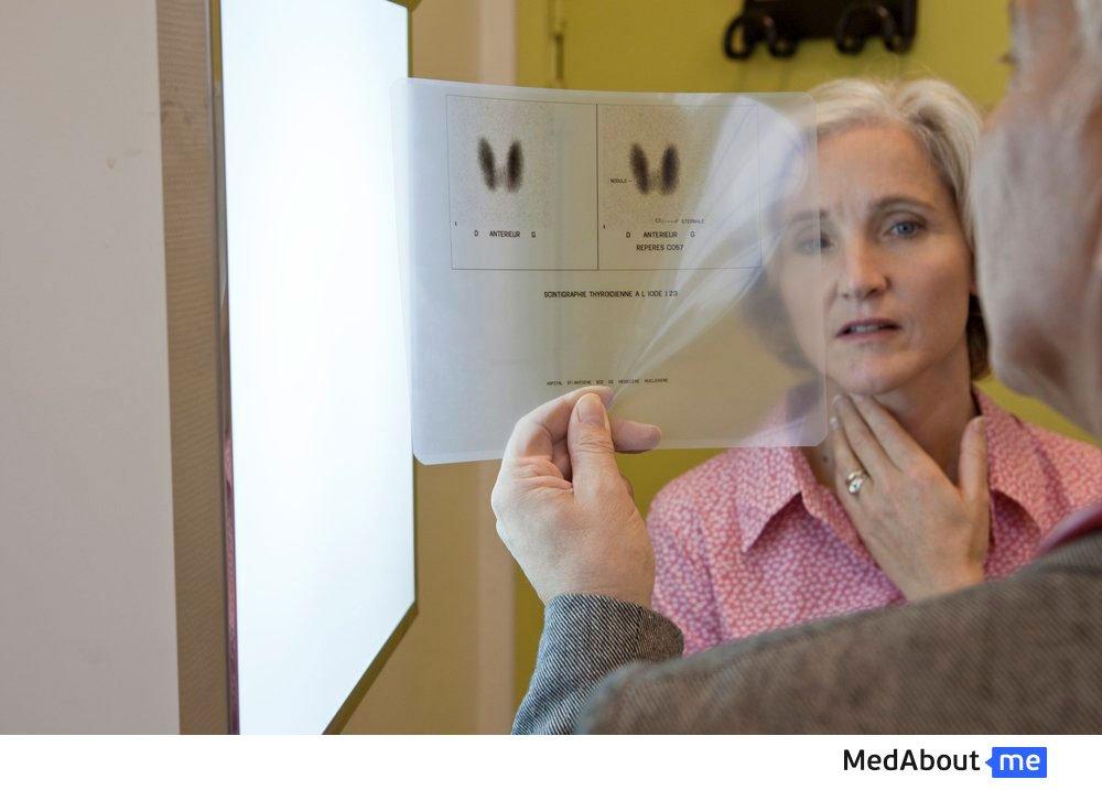 Новообразования в тканях щитовидной железы