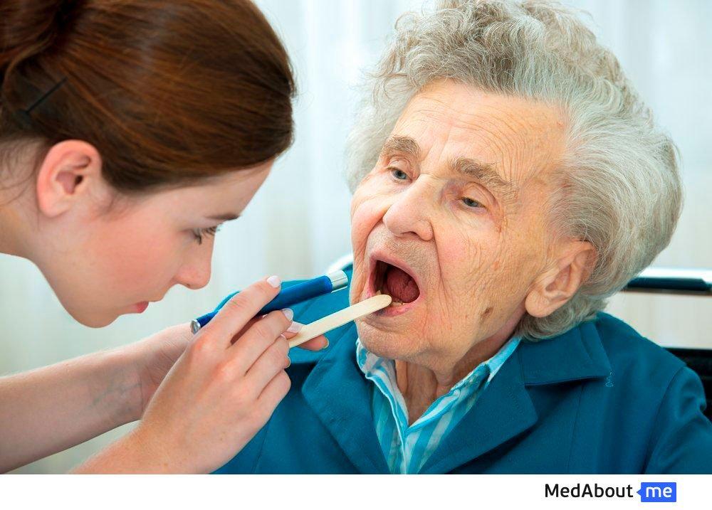 Тонзиллит у пожилых