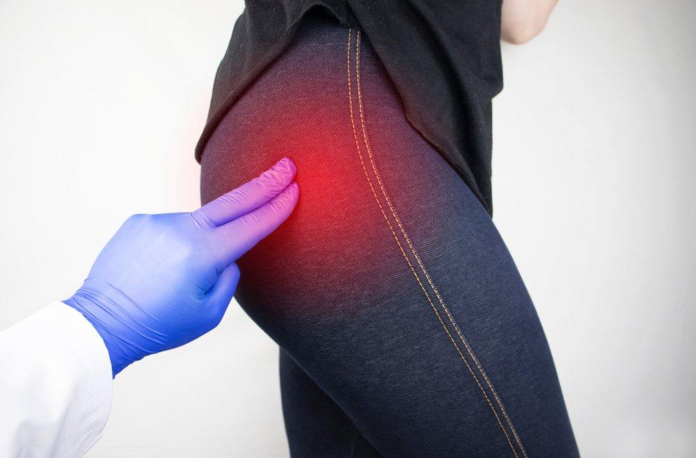 Клиническая картина при артрозе тазобедренного сустава 2 степени