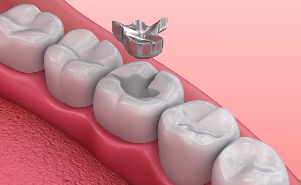 Стоматологи о преимуществах вкладок
