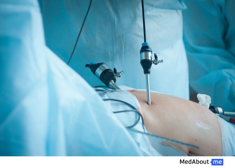 Что такое лапароскопия