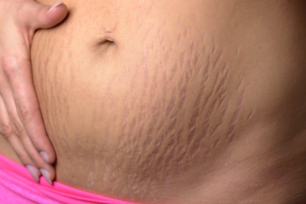 Крем от растяжек при беременности: удалит ли стрии?