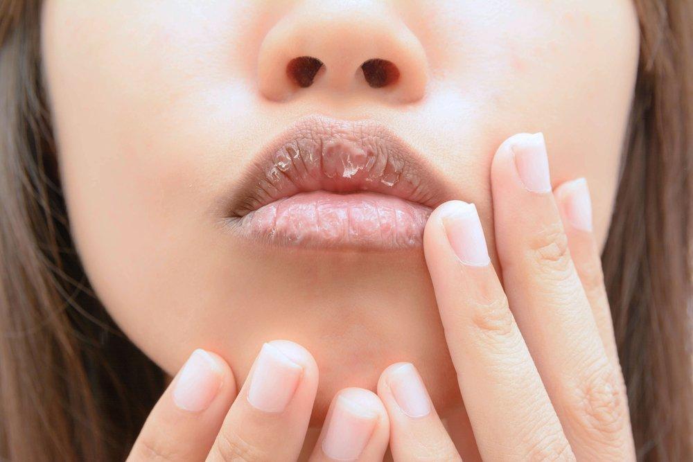 О чем рассказывают потрескавшиеся губы