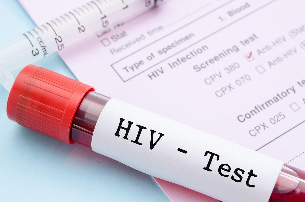 Состояние здоровья и диагностика вируса иммунодефицита человека