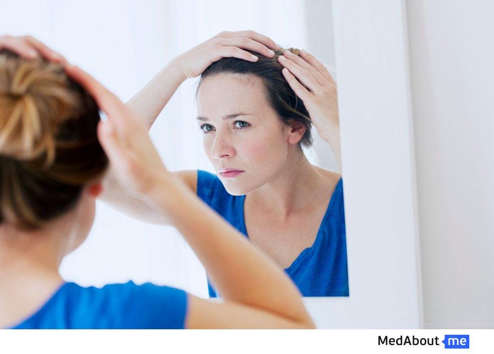 Симптомы псориаза у взрослых
