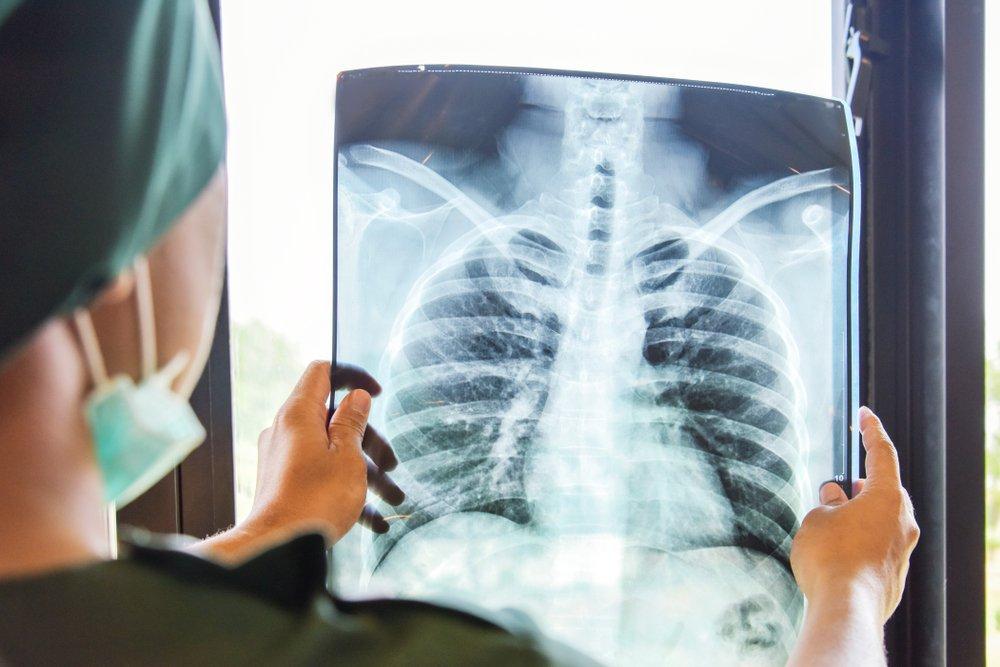 Туберкулез или COVID-19?
