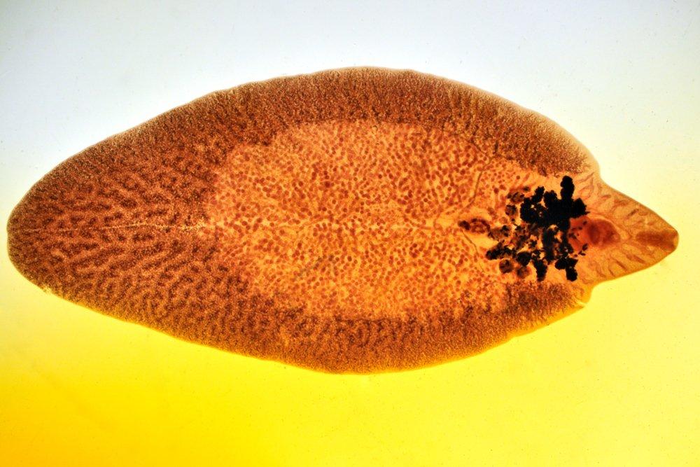 Печеночные сосальщики: как попадают в организм человека они?