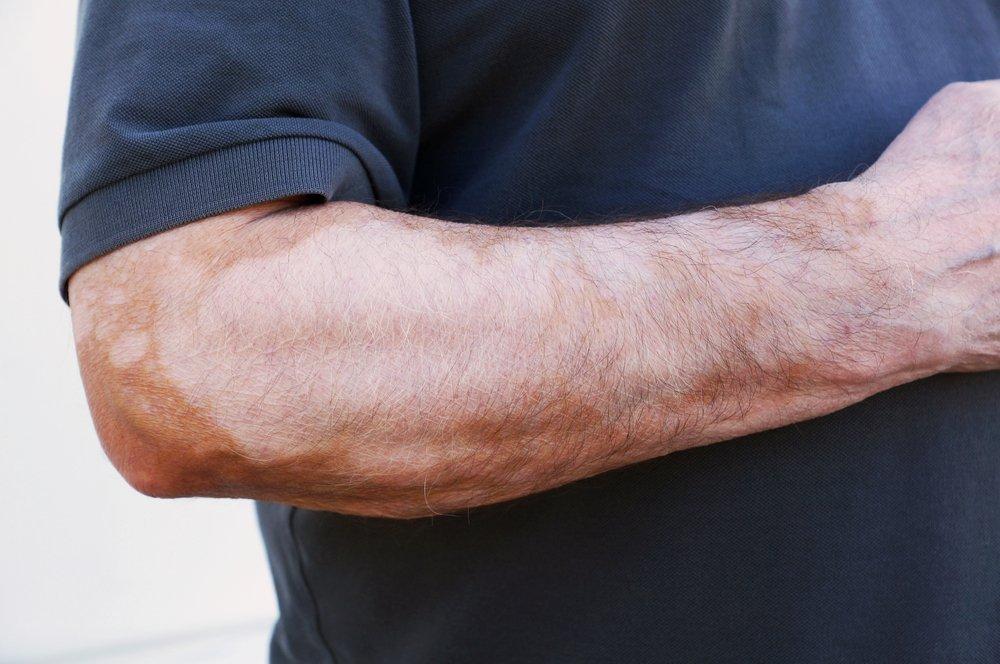 Причины появления пигментации на руках, лице