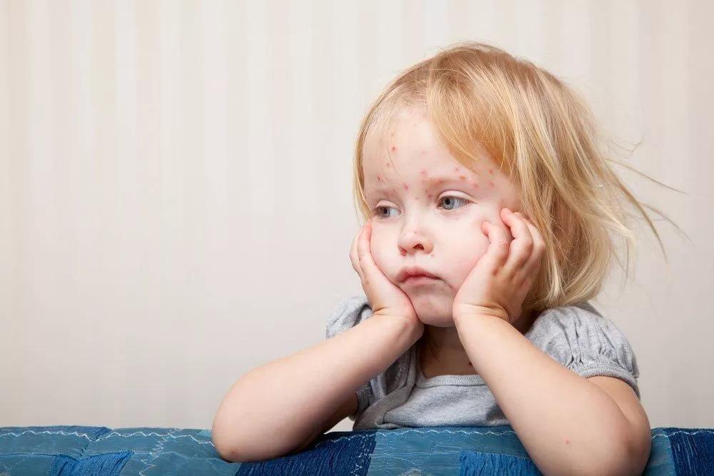 3. Игнорирование родителями симптомов аллергии малыша