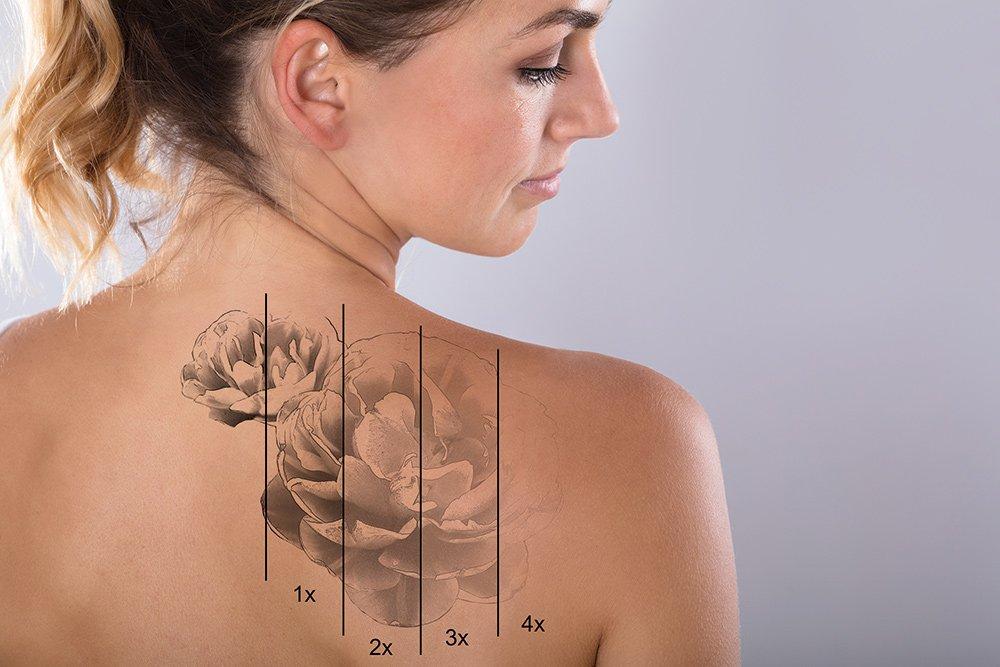 Лазерное удаление тату с кожи: как это работает?