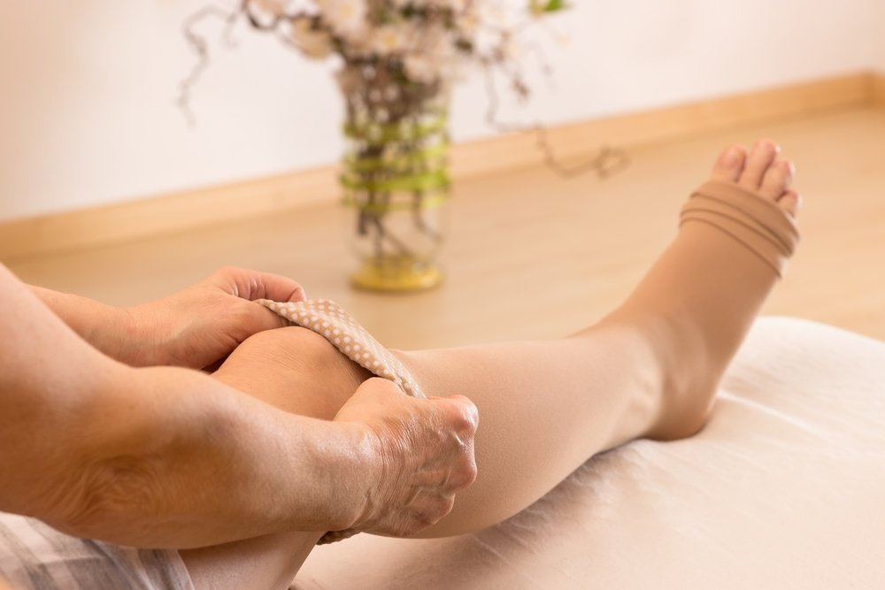 Отеки ног при тромбозах