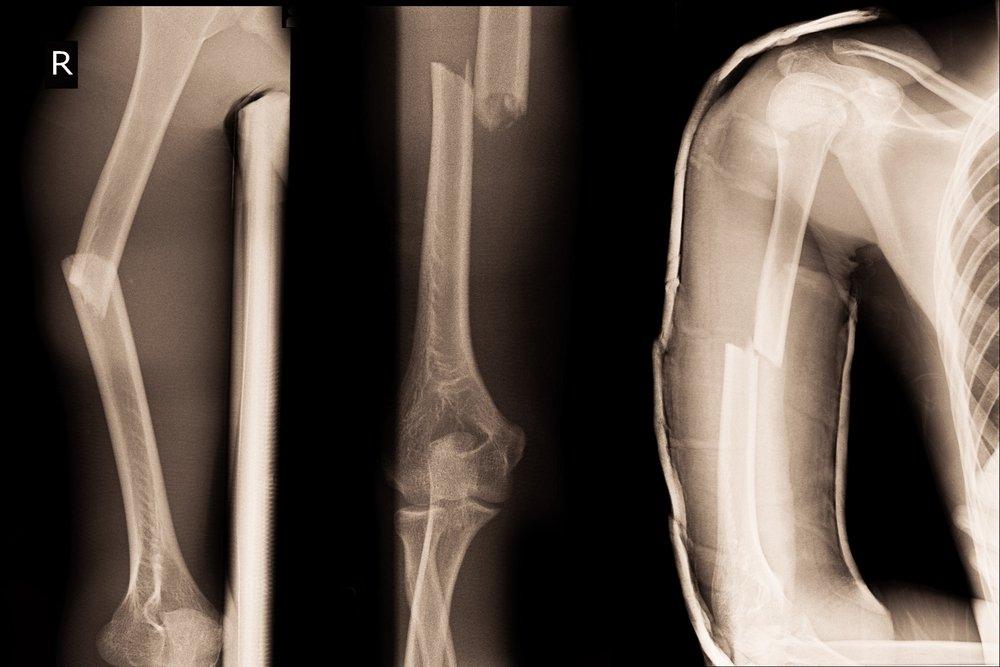 Классификация закрытых переломов