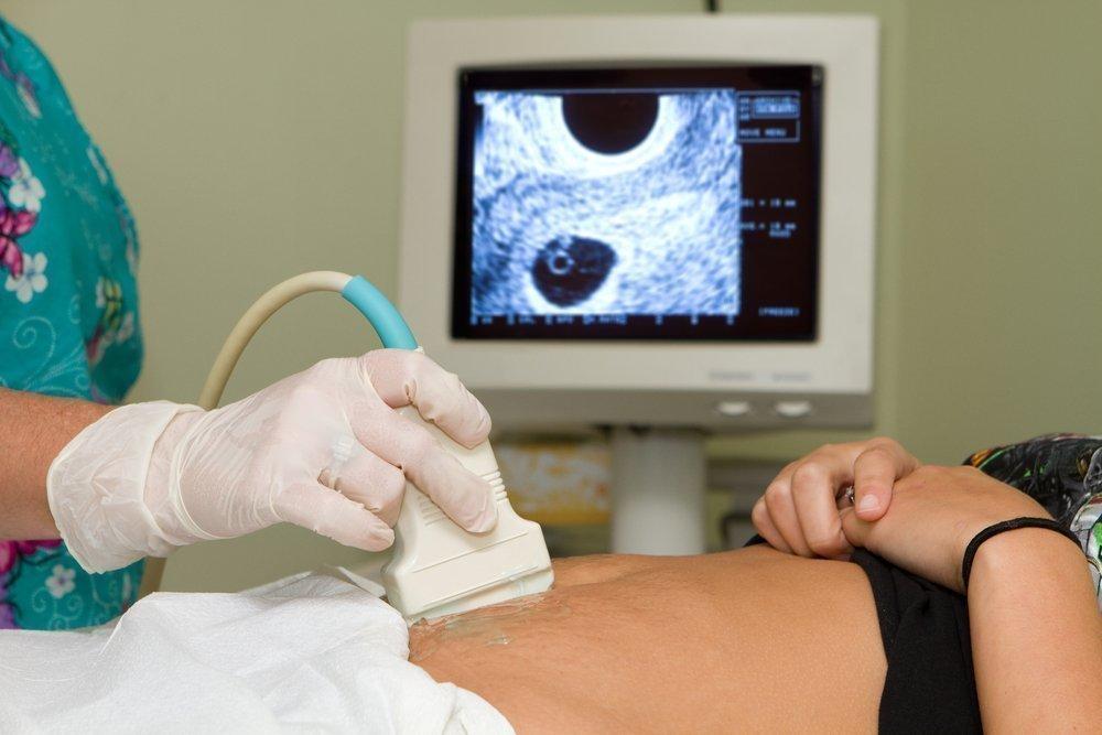 Самое доступное исследование — УЗИ эндометрия