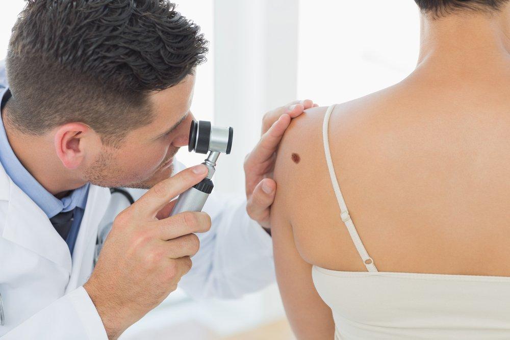 Лечение и профилактика: как распознать развитие меланомы?