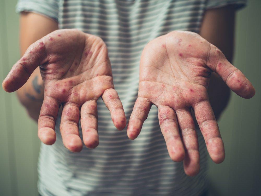 Корь: симптомы у взрослых, неспецифическая профилактика