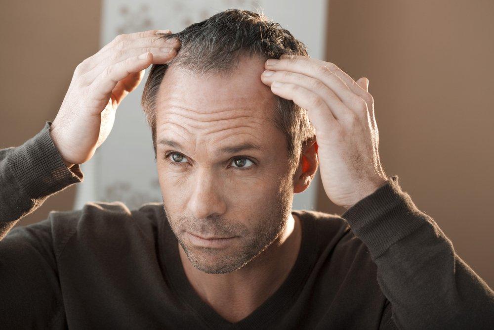 Виды алопеции (выпадения волос)