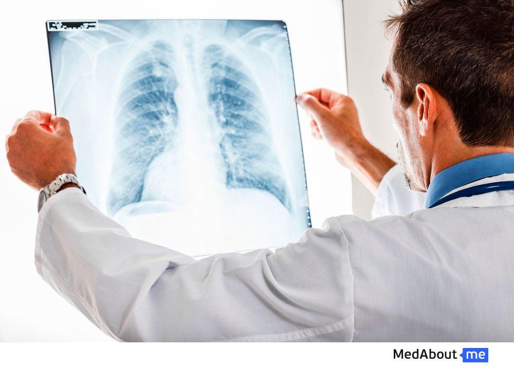 Рентгенография грудной клетки: обследование легких