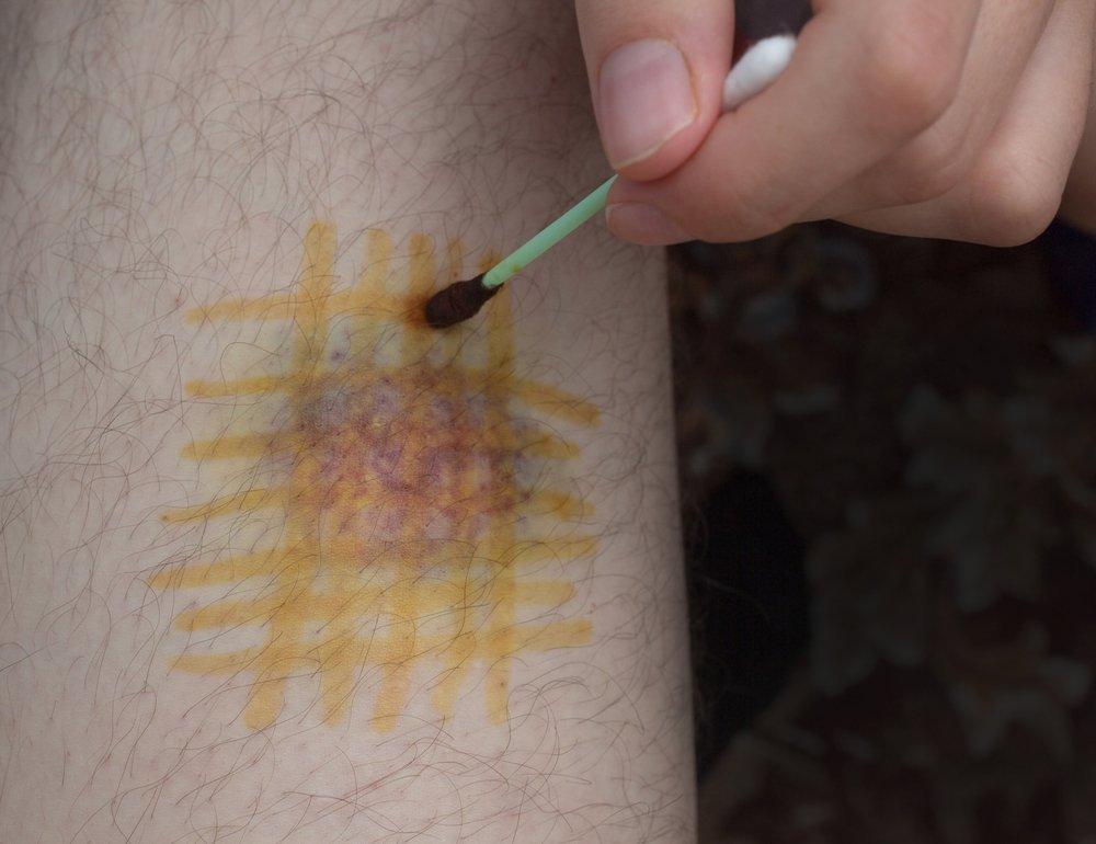 Лечат ли йодные сеточки болезни?