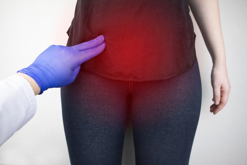 Клиническая картина при миоме матки