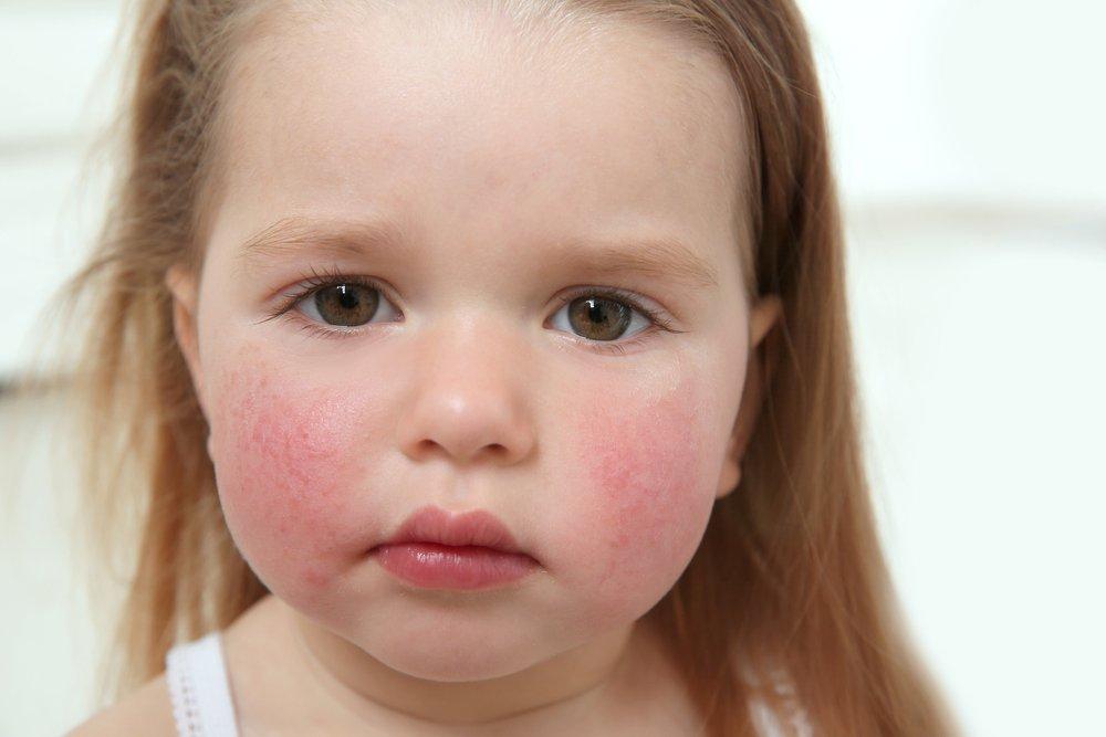 Типичные раздражения кожи ребенка