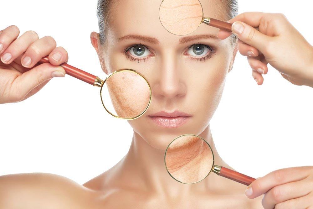 Типы сухой кожи лица и тела: характерные симптомы
