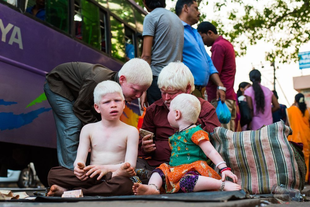 Что такое альбинизм?